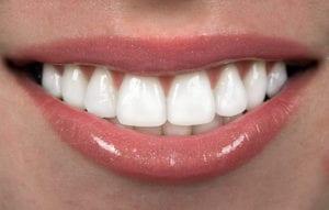 boulder-dental-veneers