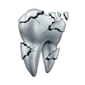 Chipped Tooth, Broken Tooth, North Boulder Dental Group