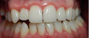 gingivitis-after