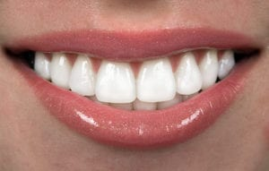 How To Avoid Sensitive Teeth With Teeth Whitening