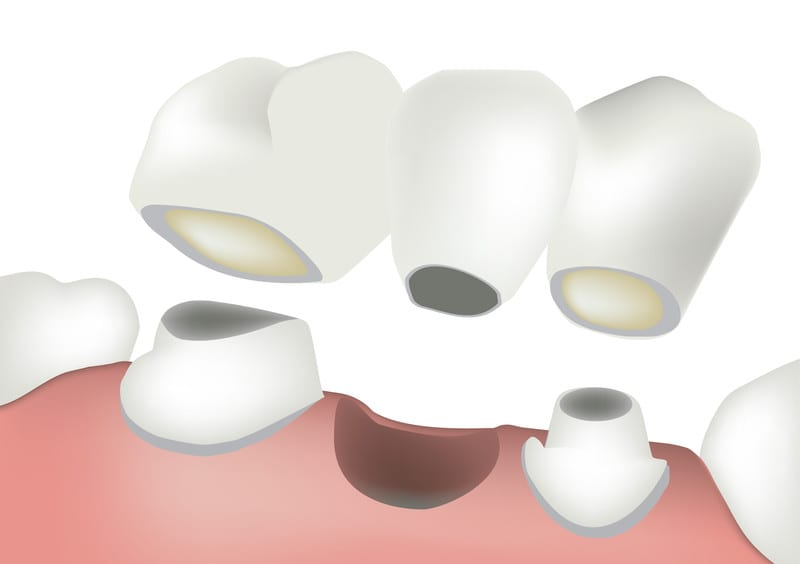 dental bridge boulder