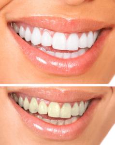 Teeth Whitening Boulder