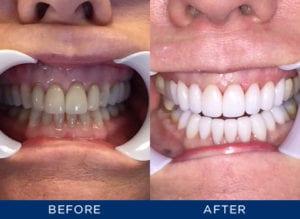 Smile Gallery at North Boulder Dental Group