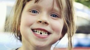 Baby Teeth Care - Boulder, CO